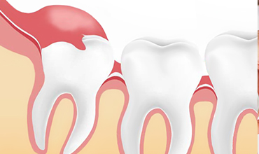 Surgical tooth extraction