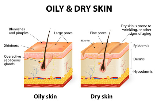 oily and dry skin
