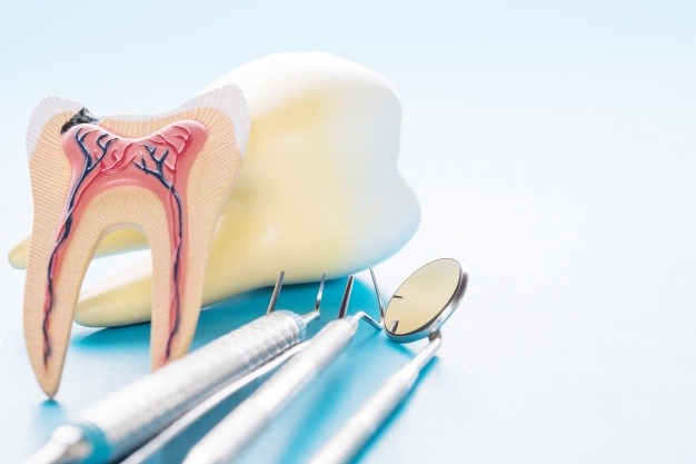 Importance of Root Canal Treatment